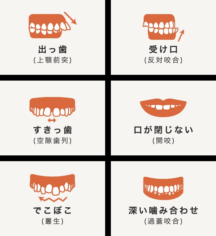 対応可能な歯並び