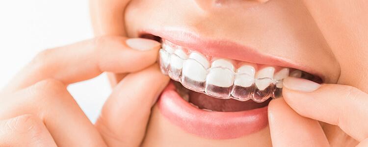 部分矯正でも全体的な矯正治療でも歯の矯正はマウスピース矯正で改善可能